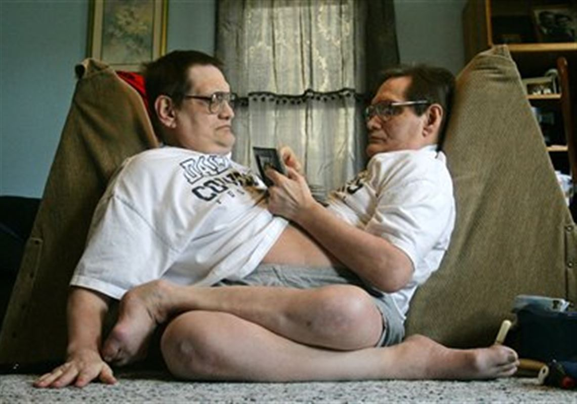 Dayton Conjoined Brothers Live Face To Face During The Last 57 Years The Blade