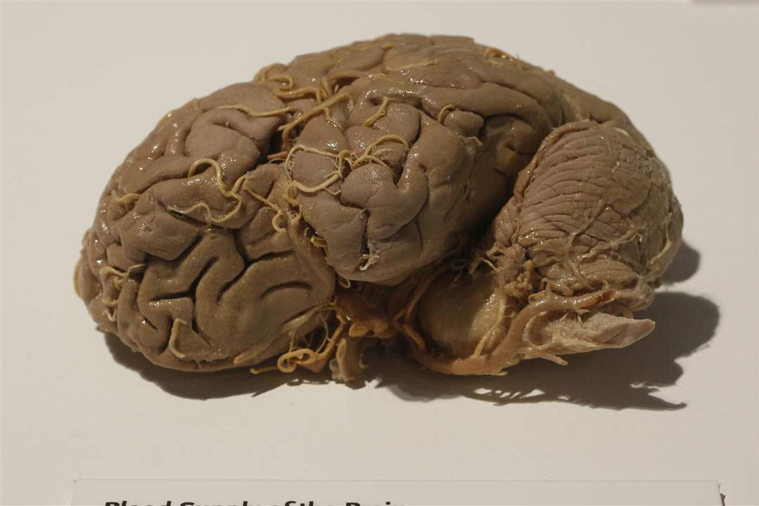 Bodies-Revealed-Exhibit-blood-supply-of-the-brain