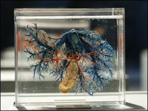 A cross-section shows the blood vessels of the liver.
