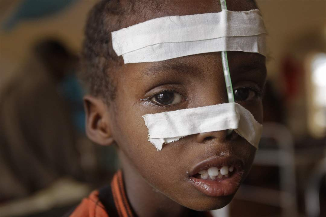 Kenya-feeding-tube-taped-face