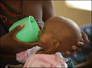 A malnourished child is fed at a hospital in Dadaab, Kenya.