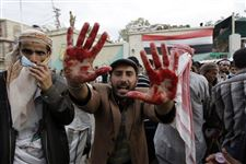yemeni-protester-holds-up-blood-stained-hands