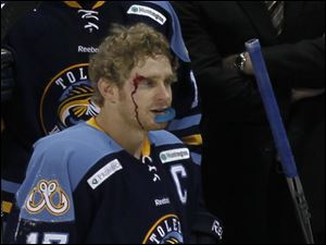 Walleye Kyle Rogers (17) is bleeding after being cut during the game. No penalty was called.