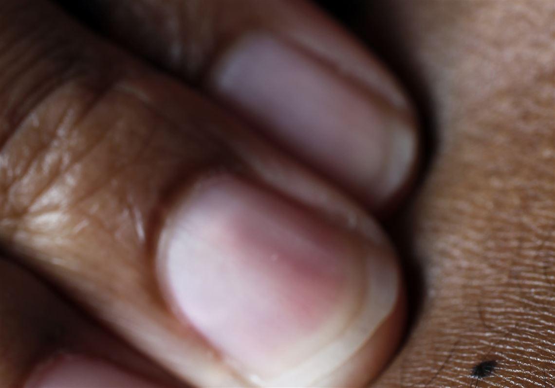 Skin Cancer Is Color Blind The Blade