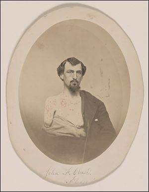 John F. Chase, who lost his right arm and left eye at Gettysburg, which is part of an exhibit at the Library of Congress of letters and diaries saved for 150 years from those who lived through the Civil War that offer a new glimpse at the arguments that split the nation.