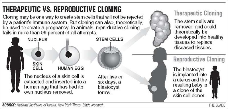 The pros of therapeutic cloning