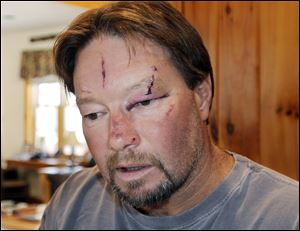 Roger Mundell Jr., bears cuts on his face at his home in Brookfield, Mass., Monday, after being attacked by a bobcat in his garage Sunday.