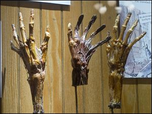 Dried hands are part of the Grimm's Anatomy exhibit at the Mutter Museum of The College of Physicians of Philadelphia. 'We don't sugarcoat or glorify anything,' says curator Anna Dhody.