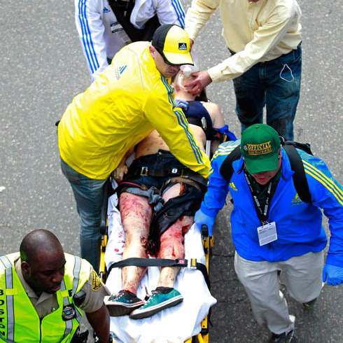APTOPIX-Boston-Marathon-Explosion-injury