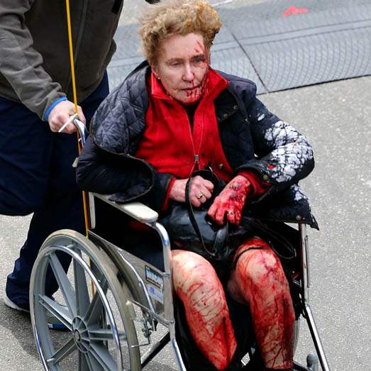 Boston-Marathon-Explosions-injured-woman