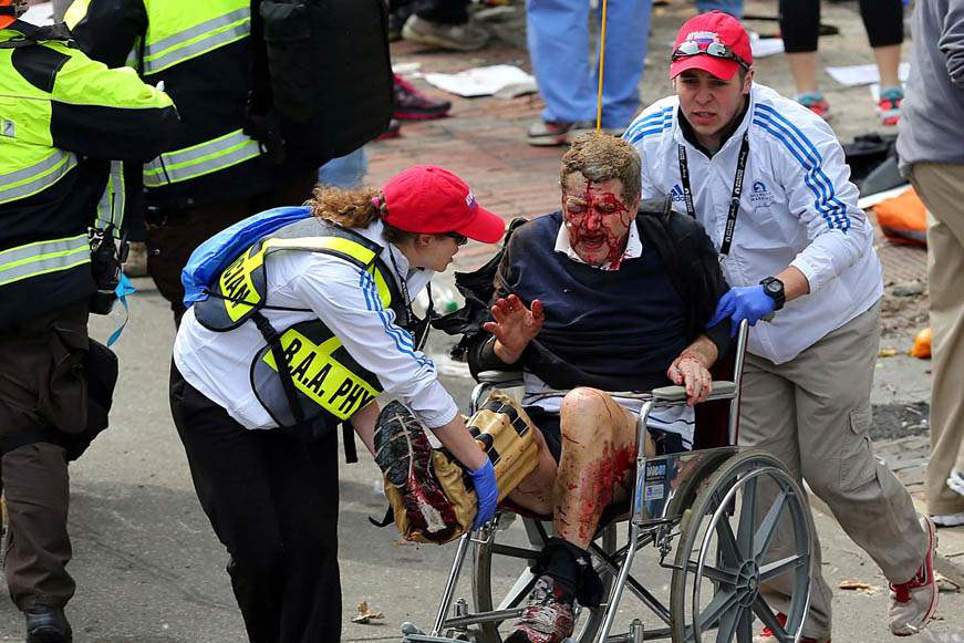 APTOPIX-Boston-Marathon-Explosions-injured-man
