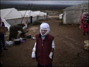 Abdullah Ahmed, 10, who suffered burns in a Syrian government airstrike and fled his home with his family, stands outside their tent at a camp for displaced Syrians in the village of Atmeh, Syria, December, 2012. This image was one in a series of 20 by AP photographers that won the 2013 Pulitzer Prize in Breaking News Photography.