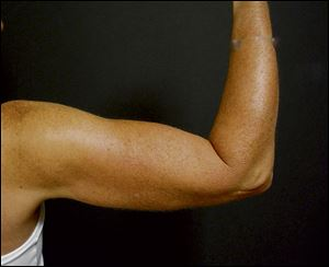A patient after upper-arm lift surgery.