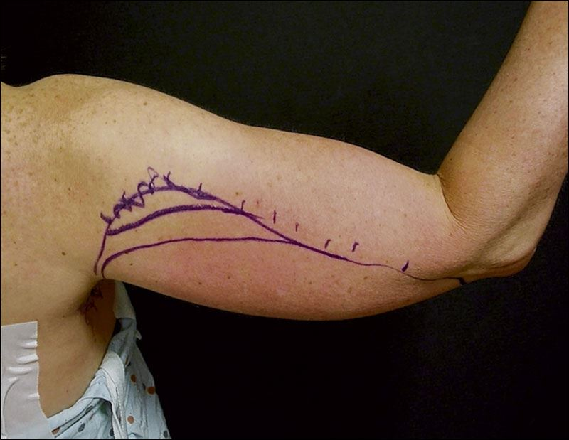Under Arm Lifts : Going under the knife to fix flabby arms toledo blade