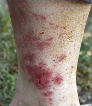 Contact with poison ivy will more likely cause a rash in the future.