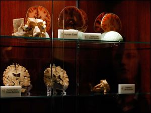 Human eyes, slices of the human brain, and other body parts greet visitors to the new Liberato Didio and Peter Goldblatt Interactive Museum of Anatomy and Pathology at The University of Toledo.