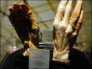 A pair of hands on display at the new Liberato Didio and Peter Goldblatt Interactive Museum of Anatomy and Pathology.