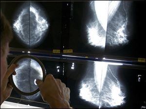 A radiologist uses a magnifying glass to check mammograms for breast cancer in Los Angeles.