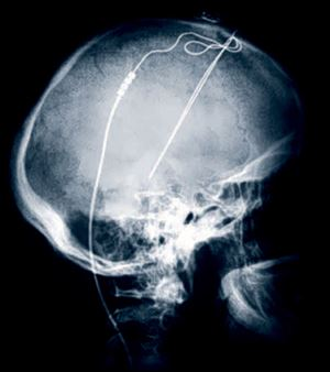 This image shows the X-Ray image of a patient with Deep Brain Stimulation leads implanted. Deep brain stimulation is routinely done for Parkinson's disease and some other illnesses, such as epilepsy.