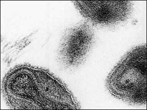 This 1975 file electronmicrograph from the Centers for Disease Control shows the smallpox virus.