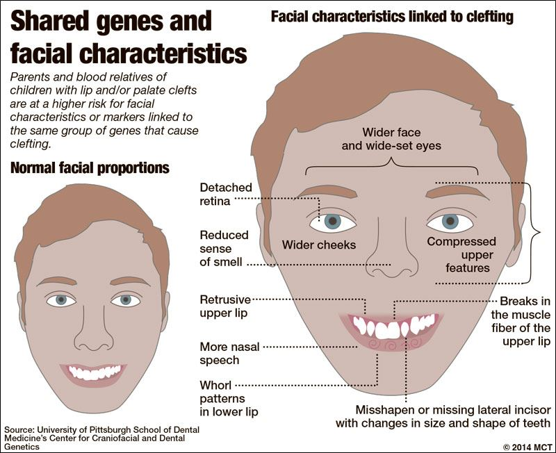 a research on the facial birth defects cleft lip and palate The cleft palate foundation reports that facial-clefting disorders are among the most common human birth defects cleft lip and/or palate is the fourth most common.