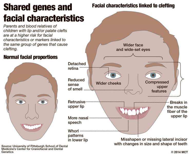 A research on the facial birth defects cleft lip and palate