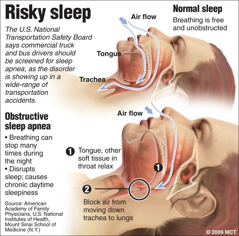 Snoring A Warning Sign Toledo Blade